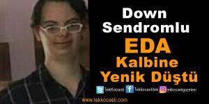 Down Sendromlu Eda, Vefat Etti