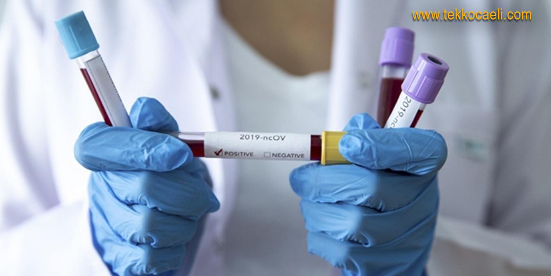 Kocaeli'de Koronavirüs Şoku
